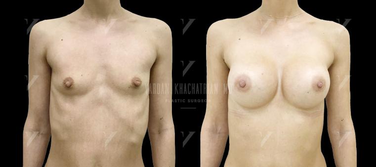 Коррекция тубулярности молочных желез Увеличение груди