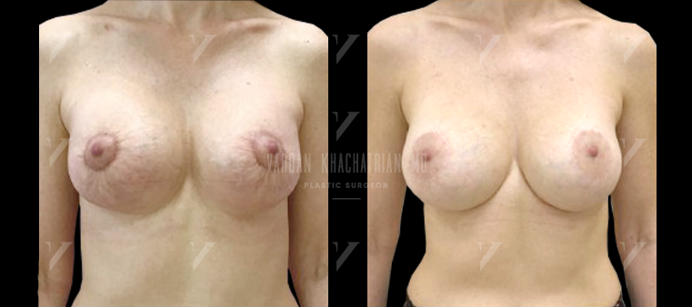 Подтяжка и увеличение груди