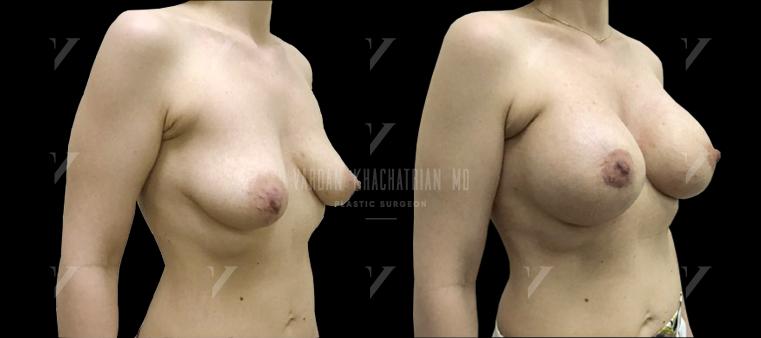 Подтяжка и увеличение груди, коррекция тубулярности молочных желез
