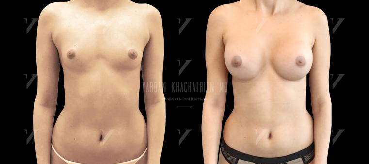 Увеличение груди Первичная маммопластика