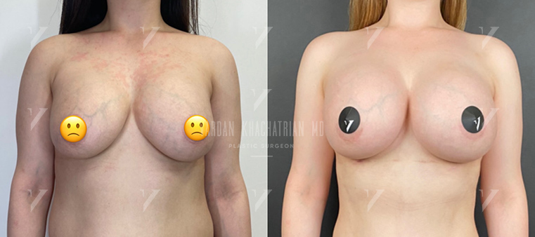 Повторная маммопластика